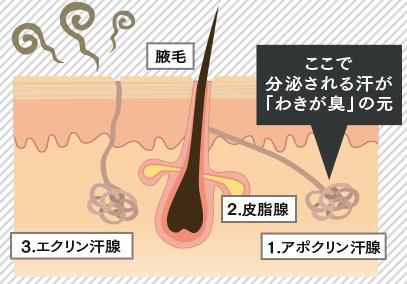 ディーアジカ ワキガ臭が発生するメカニズム